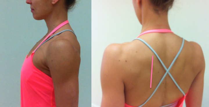 ideal-scapula-position